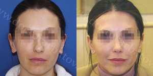 Ринопластика фото до и после — 64