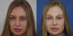 Ринопластика фото до и после — 79