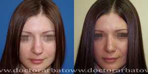 Ринопластика фото до и после — 83
