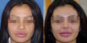 Ринопластика фото до и после — 101