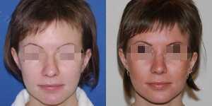 Ринопластика фото до и после — 106