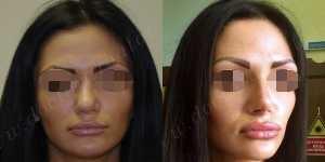 Ринопластика фото до и после — 111