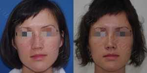 Ринопластика фото до и после — 112