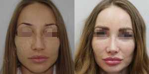 Ринопластика фото до и после — 122