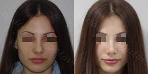 Ринопластика фото до и после — 125