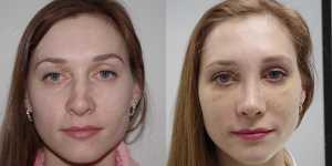 Ринопластика фото до и после — 126