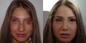 Ринопластика фото до и после — 127