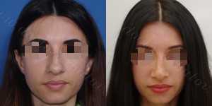 Ринопластика фото до и после — 136