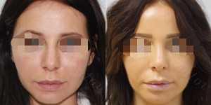 Ринопластика фото до и после — 139