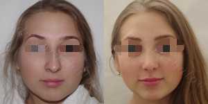 Ринопластика фото до и после — 144