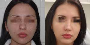Ринопластика фото до и после — 147