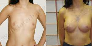 Маммопластика фото до и после — 80