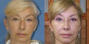 Омолаживающие операции фото до и после — 3