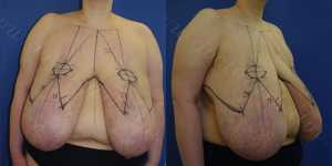 Редукционная маммопластика/Мастопексия фото до и после — 1
