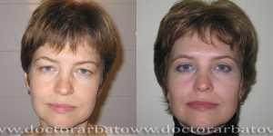 Блефаропластика фото до и после — 7