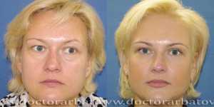 Блефаропластика фото до и после — 10