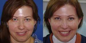 Блефаропластика фото до и после — 13