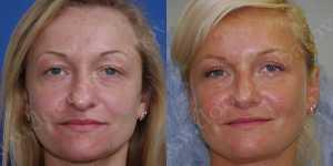 Блефаропластика фото до и после — 16