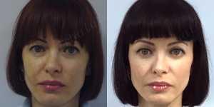 Блефаропластика фото до и после — 20