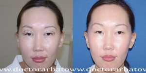 Деориентализирующая блефаропластика фото до и после — 1
