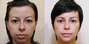Оморфиопластика фото до и после — 2