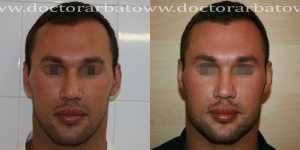 Гениопластика (коррекция подбородка) фото до и после — 2