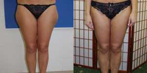 Липосакция фото до и после — 5