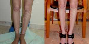 Круропластика (коррекция голени) фото до и после — 3