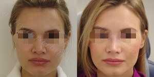 Ринопластика фото до и после — 151