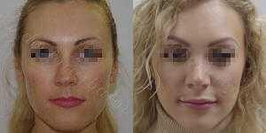 Ринопластика фото до и после — 155