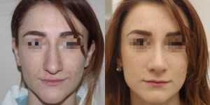 Ринопластика фото до и после — 156