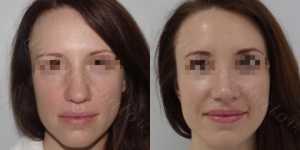 Ринопластика фото до и после — 158