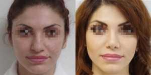 Ринопластика фото до и после — 159