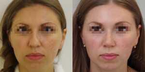 Ринопластика фото до и после — 162