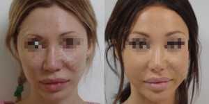 Ринопластика фото до и после —164