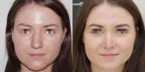 Ринопластика фото до и после —165