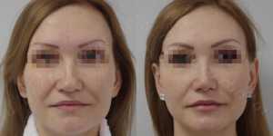 Ринопластика фото до и после —166