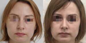 Ринопластика фото до и после —167