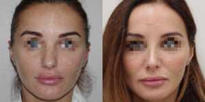 Ринопластика фото до и после —170