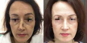 Ринопластика фото до и после —177