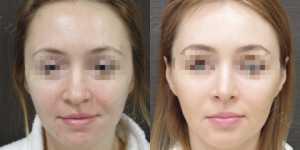 Ринопластика фото до и после —179
