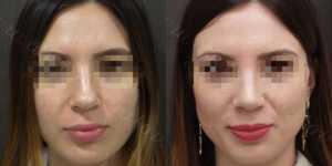 Ринопластика фото до и после —180