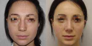 Ринопластика фото до и после —182