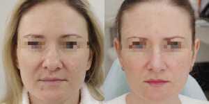 Ринопластика фото до и после —183