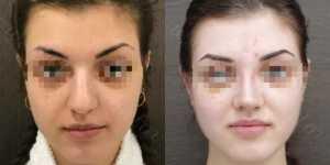 Ринопластика фото до и после —185