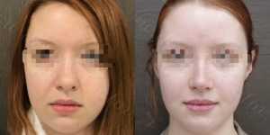 Ринопластика фото до и после —186