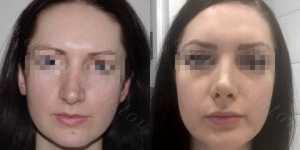 Ринопластика фото до и после —188