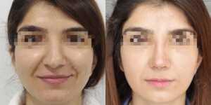 Ринопластика фото до и после —190