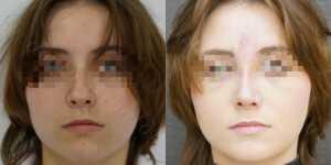 Ринопластика фото до и после —192