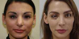 Ринопластика фото до и после —193